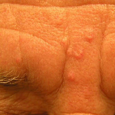 Sebaceous Hyperplasia - Treatment, Removal, Pictures ...